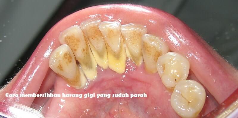 karang gigi parah